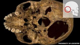 Base of Richard III's skull