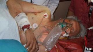 Man injured in the attack on Congress party officials in Chhattisgarh state, India (26 May 2013)