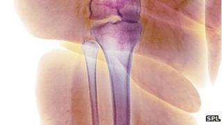 x-ray of leg