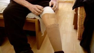 Ricky Callan had his leg amputated because of diabetes
