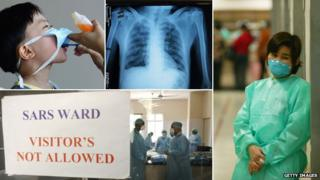 A composite image showing (from left to right): Young boy with a mask on to protect him from Sars, an x-ray of the lungs of someone with Sars, and doctors working to contain the virus