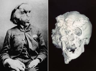 Photo of Joseph Merrick and his skull