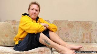 Sue Cull said doctors were 'gobsmacked' about the python bite