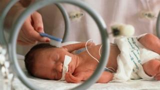 Premature baby in an incubator