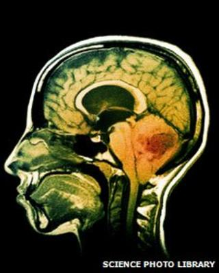 MRI of a brain tumour