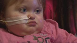 Grace was diagnosed with a heart condition during her mother's 20-week scan