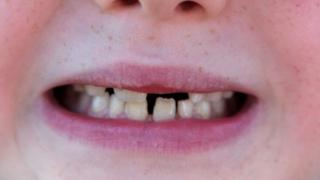 A young boy shows a gap in his teeth where two primary teeth have come out