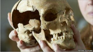scientist holding skull found at Stirling Castle. Pic by Historic Scotland