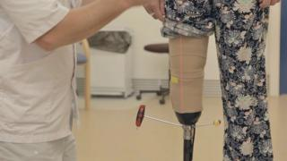 Woman getting fitted with a prosthetic leg, her trouser is rolled up and the prosthetist is using a screwdriver to tighten screws on the prosthetic
