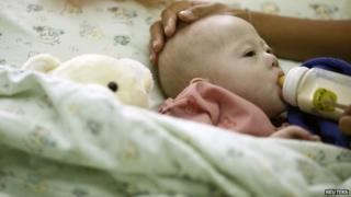 File photo: Gammy, a baby born with Down's Syndrome, at a hospital in Chonburi province, Thailand, 3 August 2014