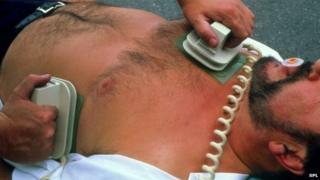 Picture of defibrillation after cardiac arrest