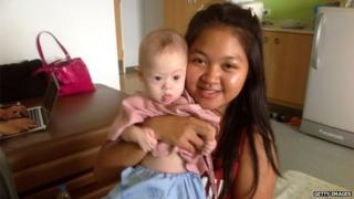 In this handout photo Thai surrogate mother Pattaramon Chanbua poses with baby Gammy at the Samitivej Hospital on August 6, 2014 in Chonburi province in Bangkok, Thailand.
