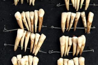 """""""Waterloo teeth"""""""