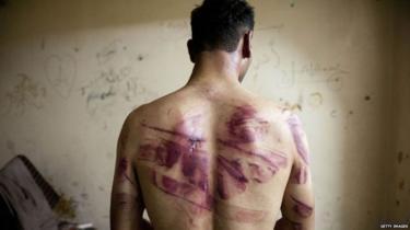 シリアの虐待被害者