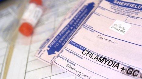 Chlamydia test
