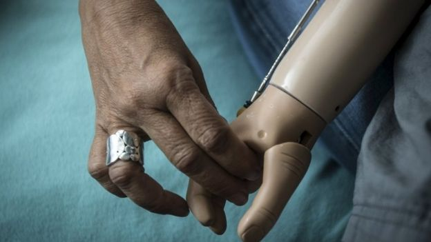 5-year-old Baraka Cosmas (R) from Tanzania holds hands with Elissa Montanati of the Global Medical Relief Fund in the Staten Island borough of New York, September 21, 2015