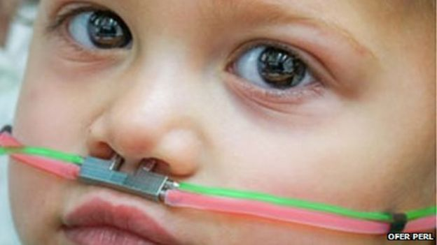 Autism, detect autism, sniffing test