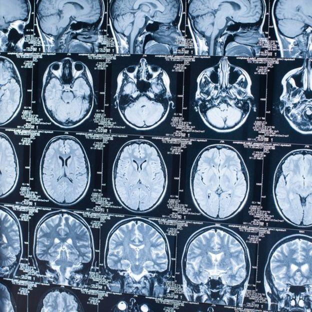 Radiografía del cerebro.