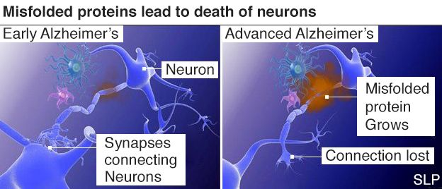 Early signs that drug 'may delay Alzheimer's decline'