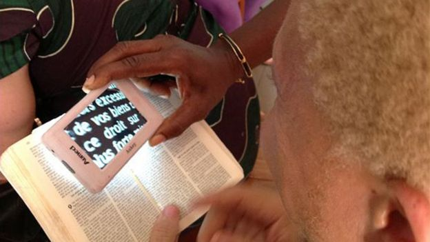 Magnifiers such as this one can help people with albinism read