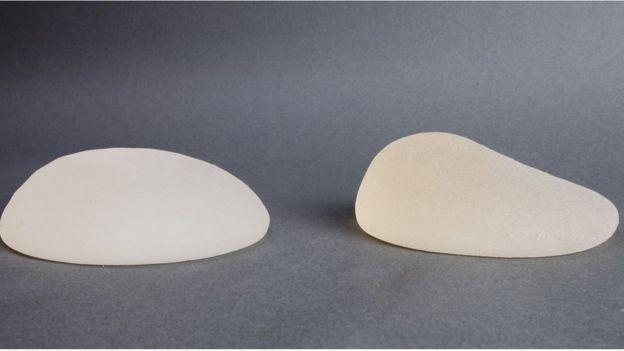 Implante mamario redondo y anatómico