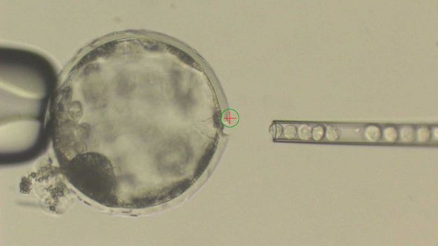 Human cells injected into a pig embryo