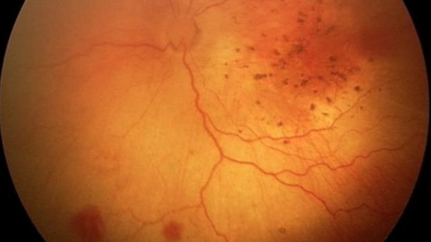 retinal haemorrhages