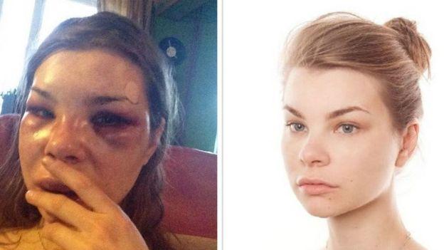Фото Анны Жавнерович до и после побоев
