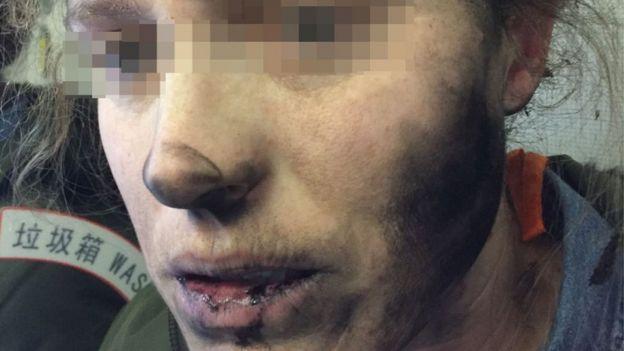 rostro de la mujer con quemaduras
