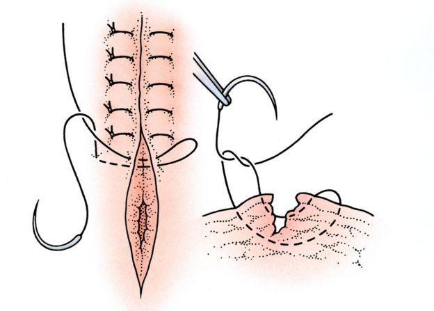 Sutura perineal