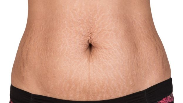 Woman's stomach with stretch marks