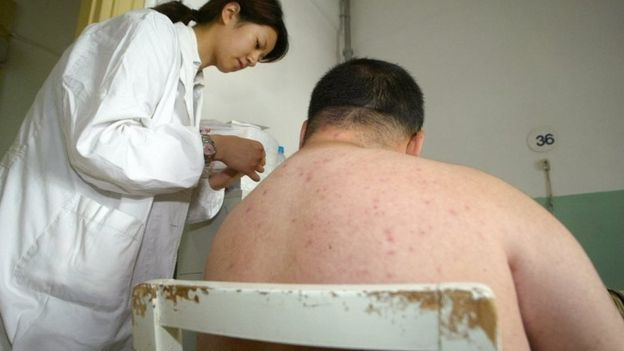 SHANGHAI, CHINA: A doctor treats an obese patient at a hospital in Shanghai, 25 May 2004.