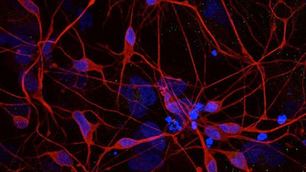 Brain cells of Parkinson's patients