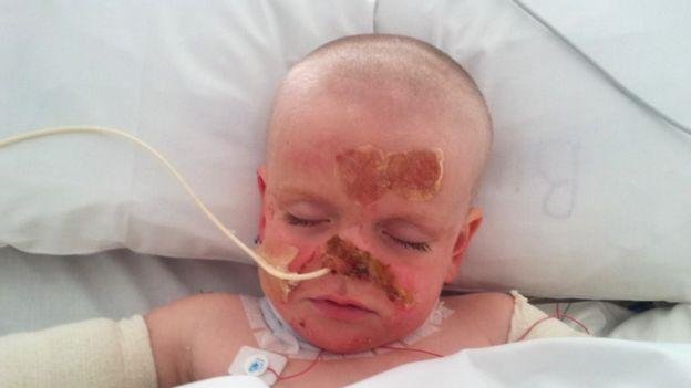 Zach, en el hospital con quemaduras y conectado a tubos.