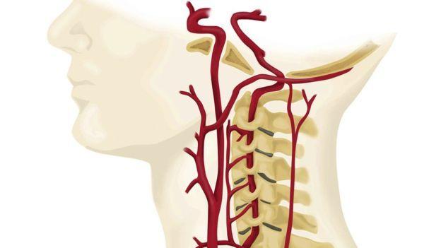 Gráfico de las arterias que pasan por el cuello.