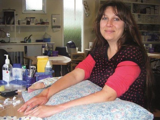 Simone Butler posa, exibindo as cicatrizes nos braços