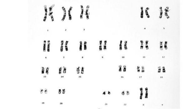 23 pares de cromosomas