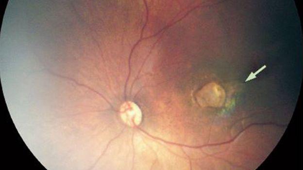 Lesão ocular em bebê com microcefalia
