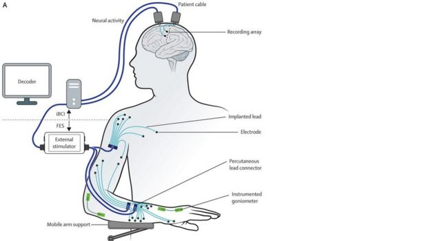 Restoration of reaching and grasping movements through brain-controlled muscle stimulation in a person with tetraplegia: a proof-of-concept demonstration