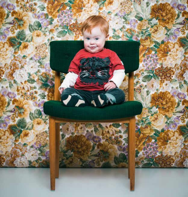 Jakob, un niño con síndrome de Down.