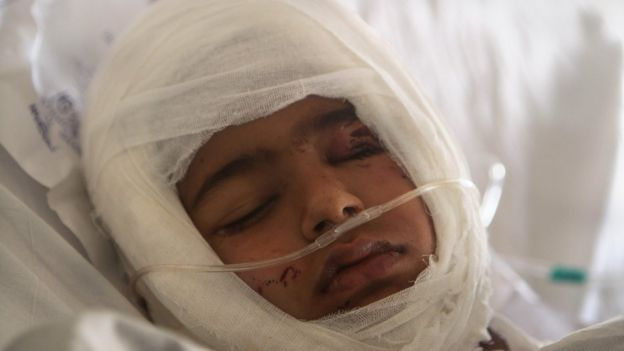 A 2012 file picture of a four-year-old boy who was bitten by a dog in Kashmir