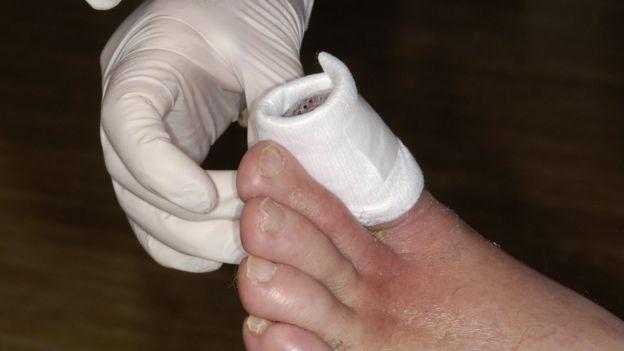gangrene toe