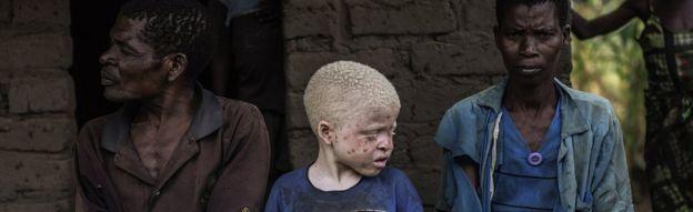 Albino entre seus pais na África