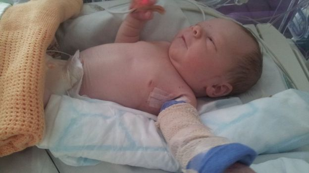 Sol in hospital hours after being born - facing amputation