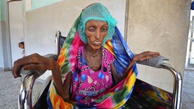Saida Ahmad em uma cadeira de rodas