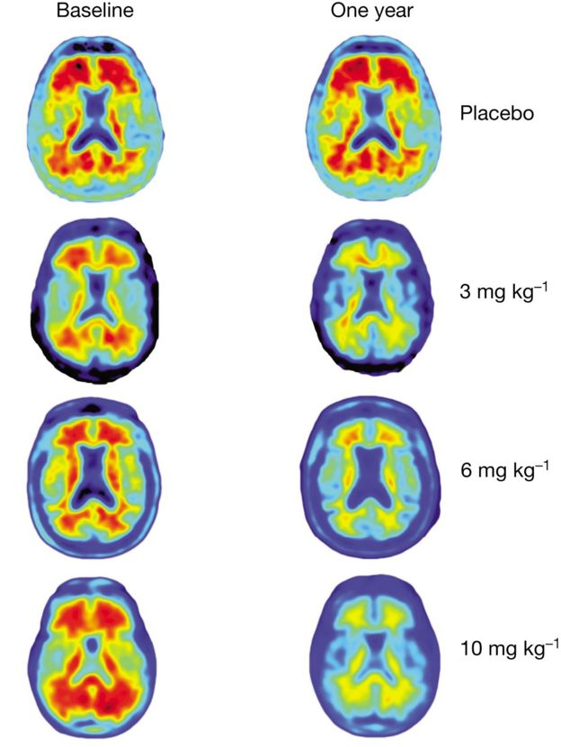 Brain scans showing effects of treatment
