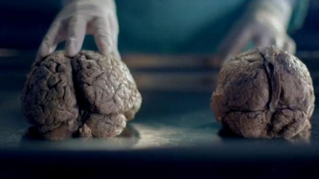 Cerebro de hombre (der.) y de mujer (izq.)