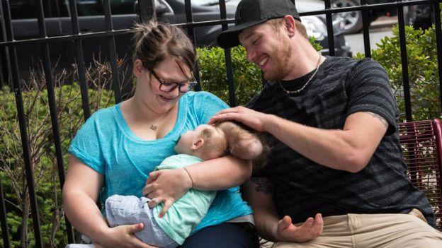 Sierrra y Dustin no lograban entender cómo su bebé podía usar el cerebro, a pesar de que estuviera fuera de su cráneo.