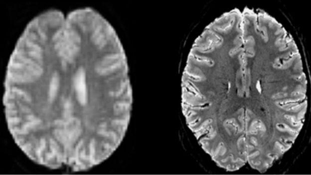 comparison of brain scans