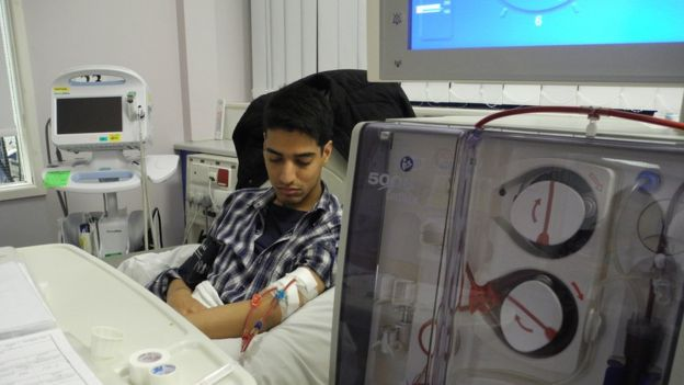 British patient receiving dialysis